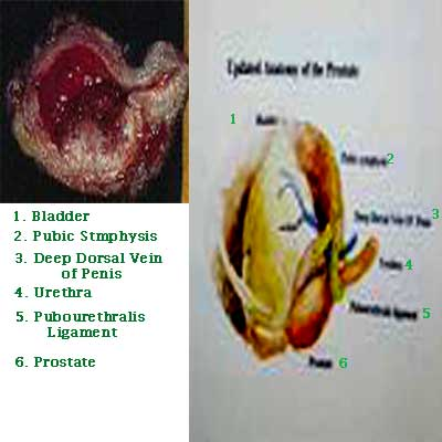 Medicine Acupuncture Herbal Treatment Cure Bladder Cancer Herbs Kuala Lumpur Medical Treatment Cure Centre
